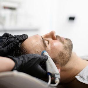 HydraFacial Behandlung in Aalen bei Kat&More