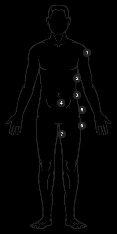 Mögliche Körperzonen bei Behandlung mit Kryolipolyse